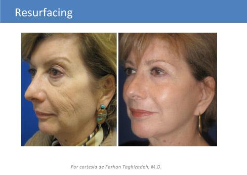 Cirugia Plastica Avanzada Laser Para Rejuvenecimiento Facial