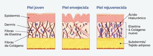 esquema-piel-rejuvenecida