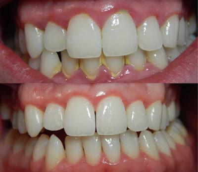 Cara Memutihkan Gigi Yang Kuning Dan Berkarang Cara Memutihkan Gigi