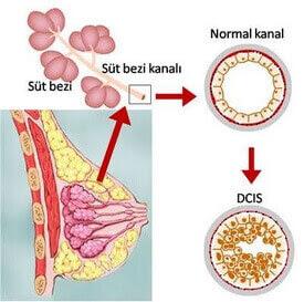 Memede duktal karsinoma in situ (DCIS)