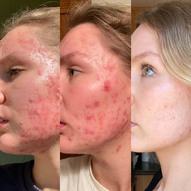 Les ètapes à suivre pour bien désintoxiquer la peau et paraître plus jeune