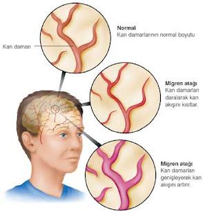 şiddetli baş ağrısı diye bilinen migren patolojisi ve fizyolojisi, damarlarda ne olur