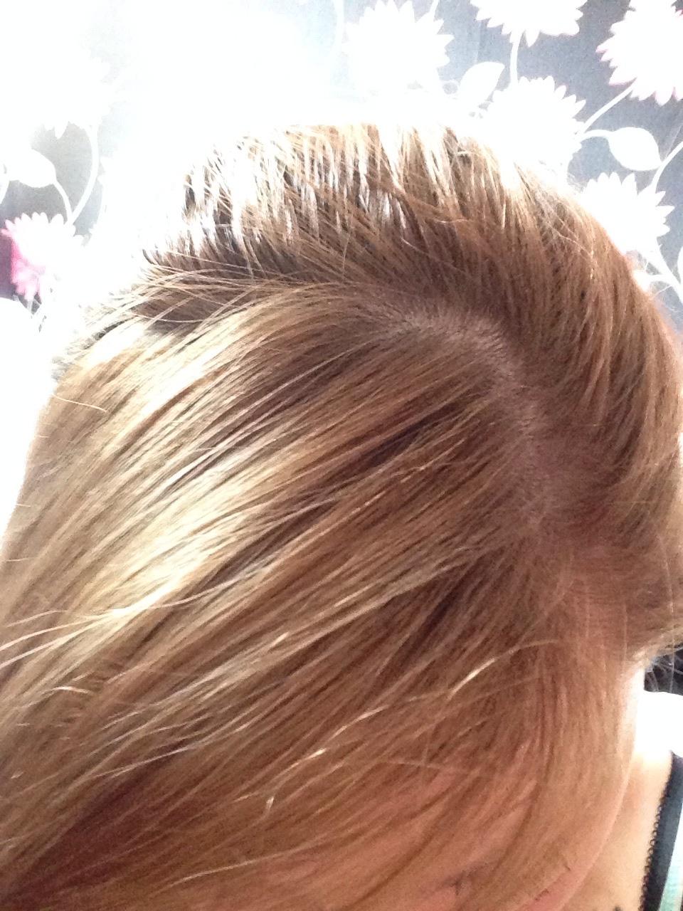 Photo of Ofaglasgowgirl hair in 2014