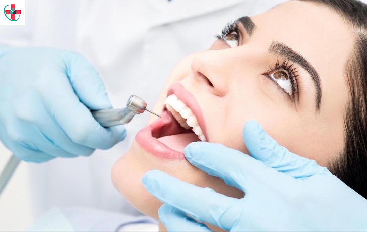 A Guide for a Root Canal Procedure