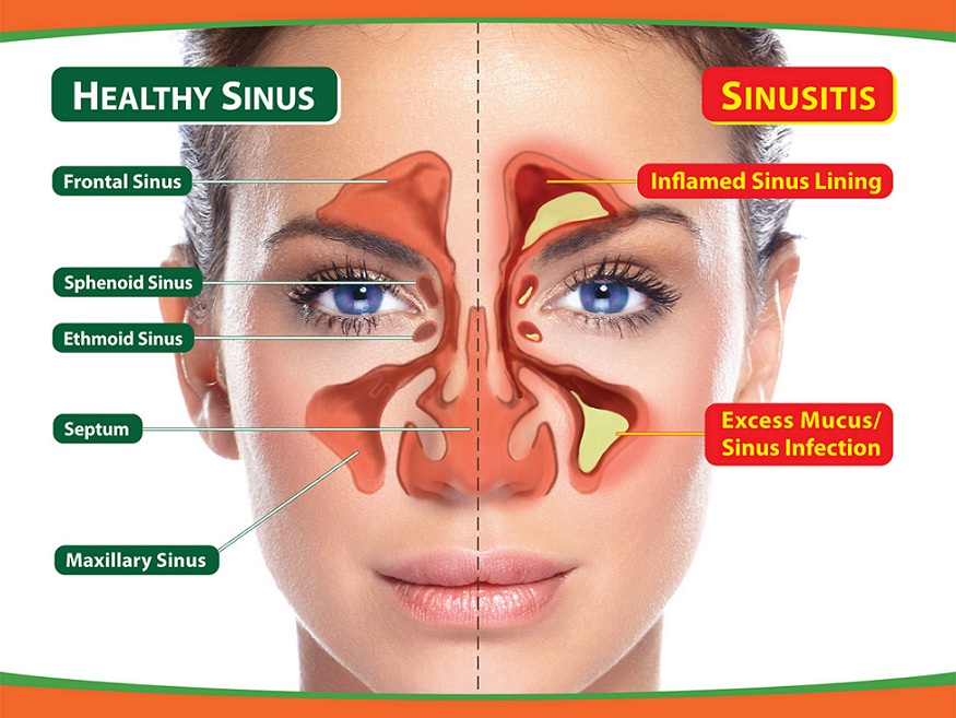 Ciri Ciri,Gejala,Penyebab Penyakit Sinusitis & Obat Herbalnya
