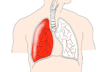 Asuhan Keperawatan Pasien Tuberculosis