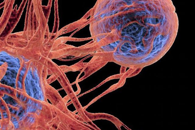 أعراض السرطان المبكرة,الوقاية من مرض السرطان,أنواع مرض السرطان,مرض السرطان pdf,علاج مرض السرطان,أعراض السرطان,حقيقة مرض السرطان,متى اكتشف مرض السرطان