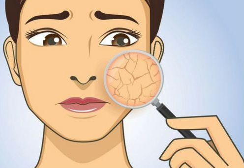 how to get rid of dry skin naturally