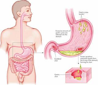 Obat Maag Kronis Herbal