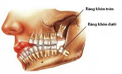 Nên làm gì khi răng khôn mọc thẳng gây đau nhức?