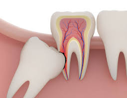 painful second molar due to third molar