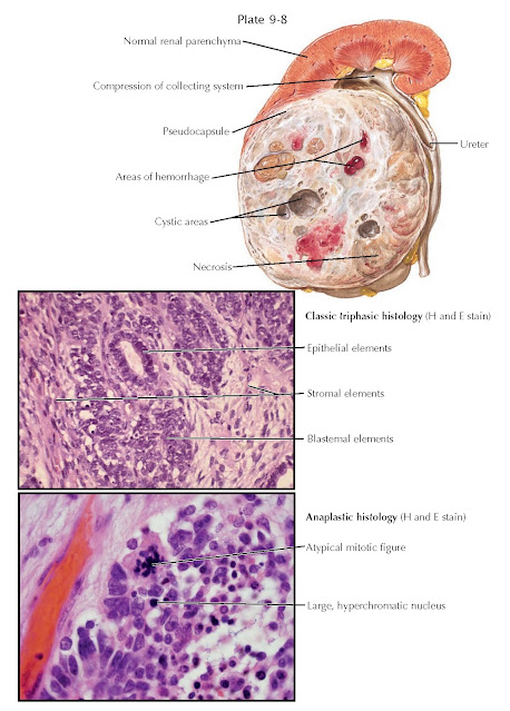 GROSS APPEARANCE AND HISTOPATHOLOGIC FINDINGS OF WILMS TUMOR