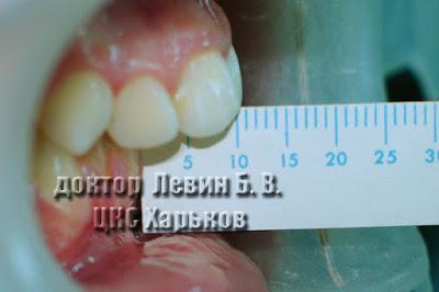 На фото между резцами верхней и нижней челюстей 10мм