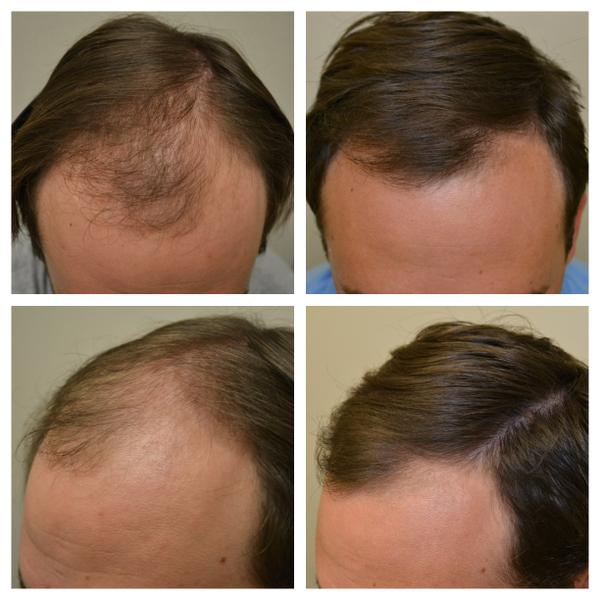 Image Result For Cara Menumbuhkan Rambut Kumis Secara Alami