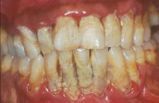 Cara Menghilangkan Plak pada Gigi