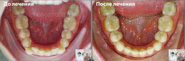 Форма нижнего зубного ряда до и после ортодонтического лечения
