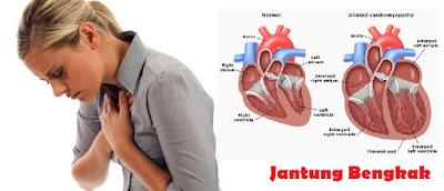 Penyebab Jantung Bengkak & Obat Jantung Bengkak TERBUKTI MUJARAB Menyembuhkan Jantung Bengkak