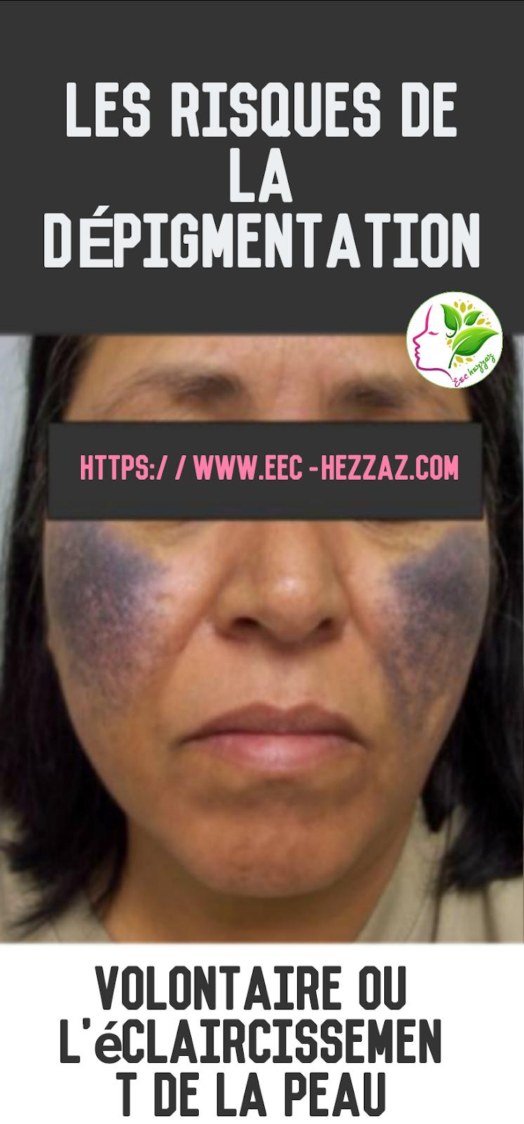 Les risques de la dépigmentation volontaire ou l'éclaircissement de la peau