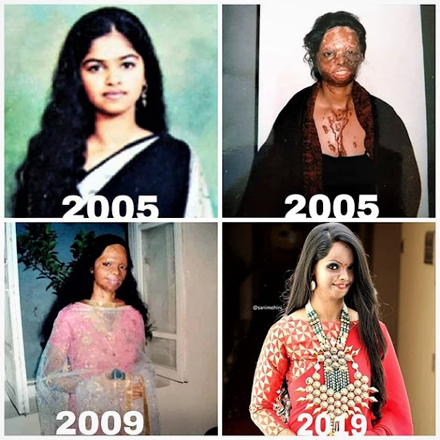 laxmi agarwal before & after