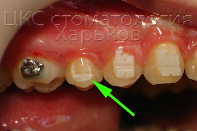 Вид зуба после отклеивания брекета по вине пациента