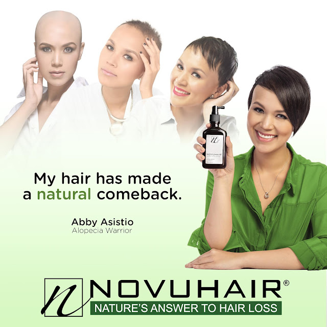 Alopecia Philippines