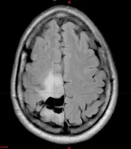 Brain tumor symptoms and types of treatment method explained 2020