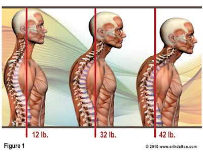 előre helyezett fejtartás, helyetelen fejtartás, tartáshiba, nyakfájdalom, nyaki geirnc, nyaki porckorongsérv,