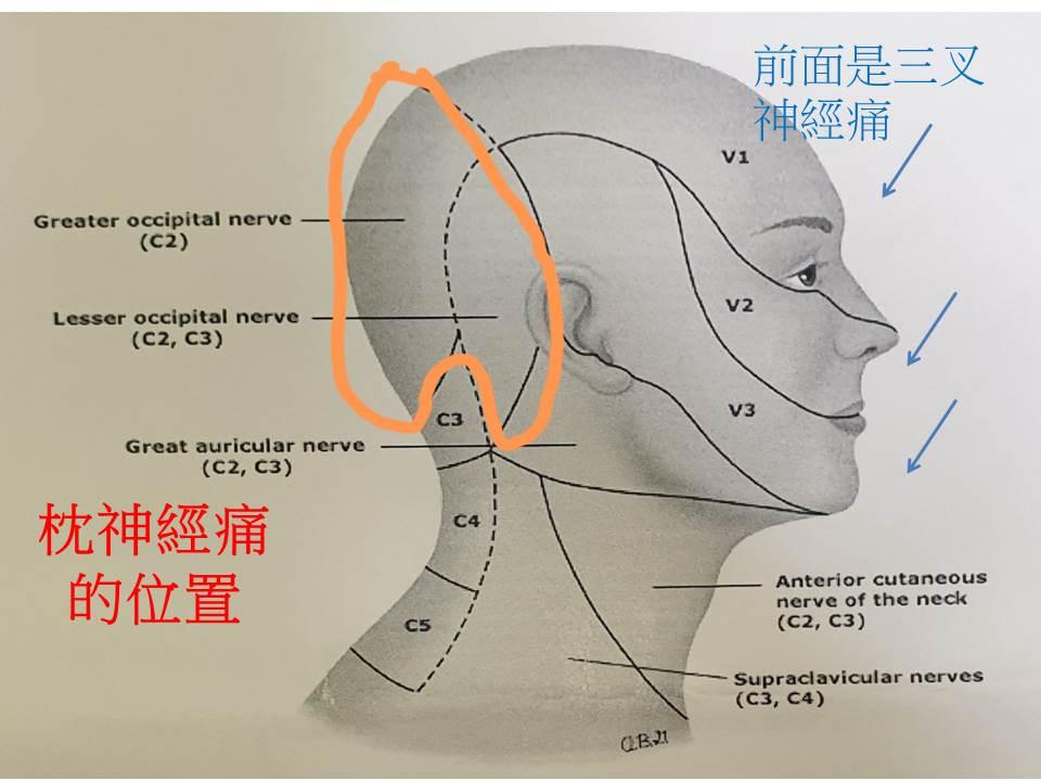 陳郁欣醫師: 後腦杓抽痛是神經痛嗎?