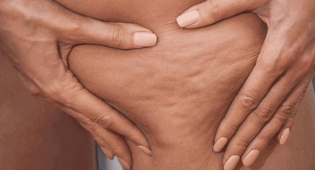 ما هو السيلوليت وما هي أسبابه ؟ وهل يمكن علاجه