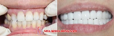những điều cần biết về bọc răng sứ -12