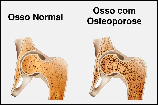 imagem de osso normal e com osteoporose