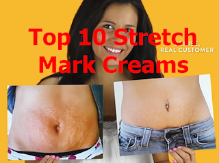 Top 10 stretch mark creams review