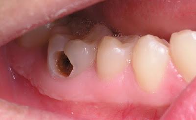 Cần biết đánh răng đúng cách