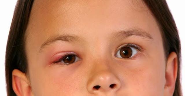 Fatal Akibatnya! 4 Bagian ini Pantang untuk Dipukul Meski Sedang Marah Pada Anak