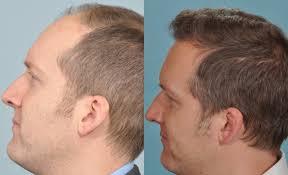 saç ekimi öncesi ve sonrası foto 10