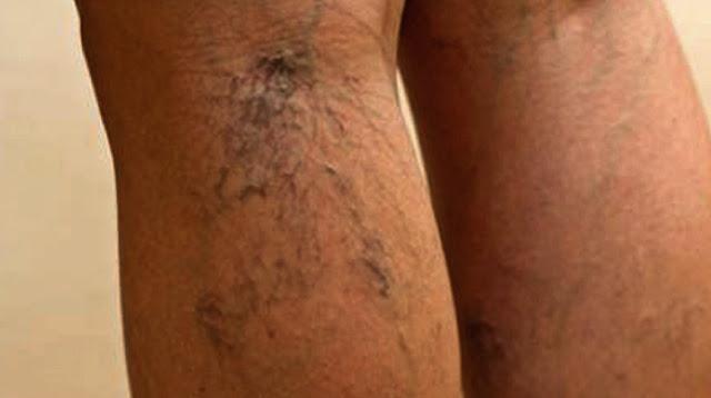ما هي الدوالي وكيفية علاجها varicose vein