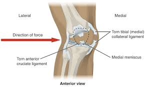 Knee pain - Injuries - Knee pain - Overview, symptom, Causes, Mechanical problems