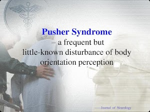 Pusher Syndrome : Patologi, Assessmen, Prognosis & Treatment