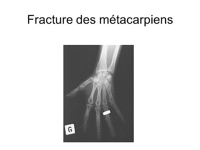 Fracture des métacarpiens .pdf