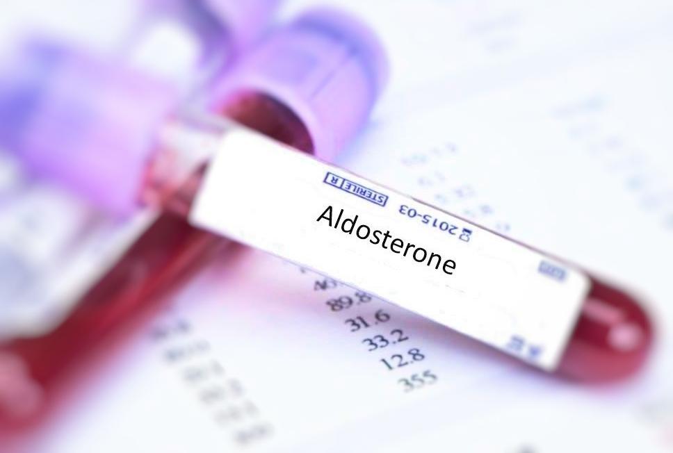 Aldosterone Test
