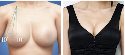 keunggulan operasi plastik payudara wonjin 2a