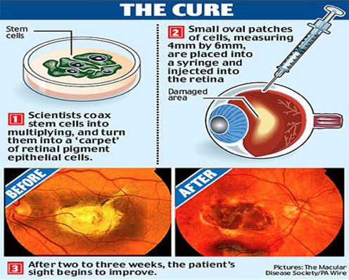 Embryonic Stem Cell Retinal Implants Could Restore Vision