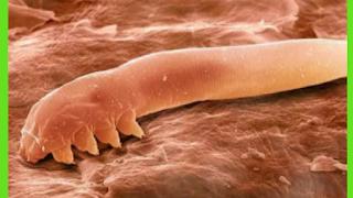 images of face mites demodex folliculorum