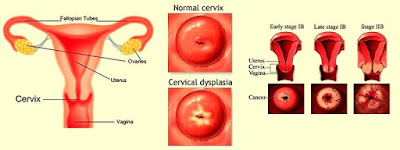 Cervical dysplasia is an abnormal change in the cells of the cervix in the uterus.