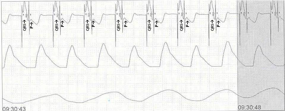 PediCardiology Quiz Answers: Answer to Quiz #4: EKG