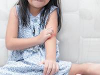 Beberapa Cara Mengatasi Gejala Alergi Pada Anak Anda