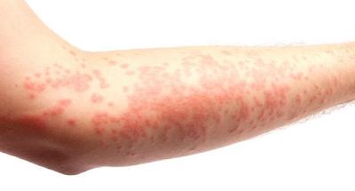 3 Cara Alami Mengobati Alergi Dermatitis Dengan Kacang Hijau dan seledri