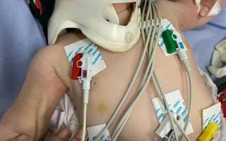Médica chama a polícia após atender bebê com mais de 30 lesões