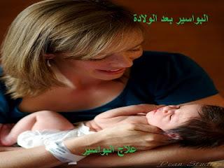 البواسير بعد الولادة
