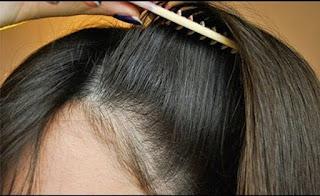 أسباب تسبب تقصف الشعر و علاج الشعر المتقصف من الأمام